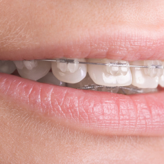 Common Problems Treated in Richmond Hill Orthodontic Clinics